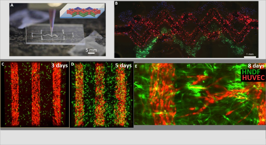 Cell-laden gel matrix encourages angiogenesis